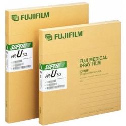 Röntgen Filmi Fujifilm 24x30 Yeşile Hassas